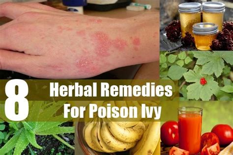 herbal cures for poison oak picture 6