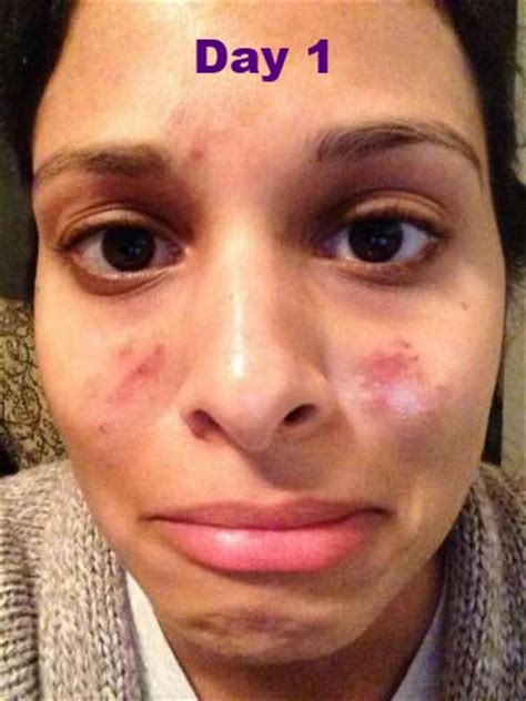 subcision acne scars california picture 22