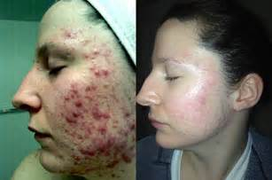 drug use and acne picture 6