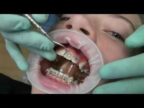 false teeth permanent killeen tx picture 13