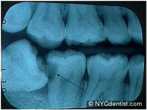filling cavities in wisdom h picture 17