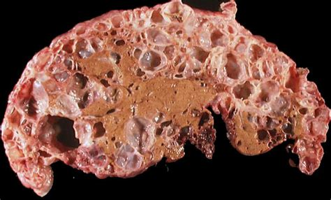 are hypodensities cysts in the liver simple or picture 1