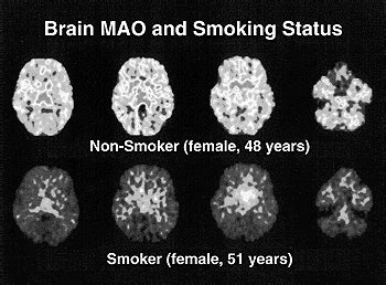 how to cleanse the brain with smoke picture 1