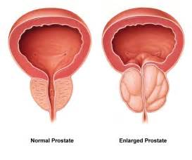 prostate enlargement picture 5