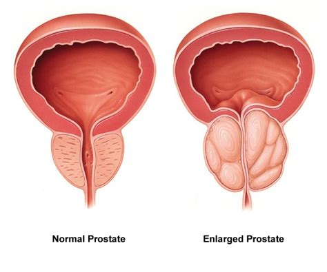 Purpose of the prostate picture 10