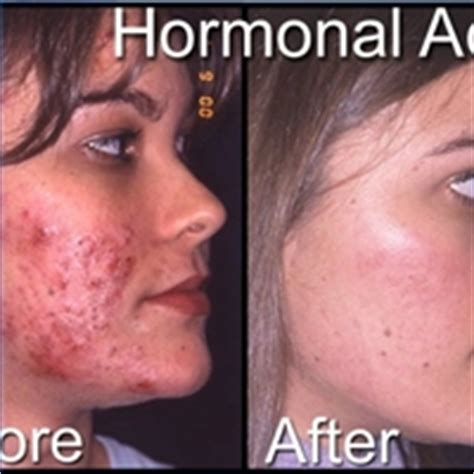 acne in women picture 5