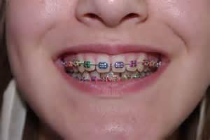 colored braces h picture 7