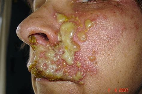 pictures of eye herpes picture 9