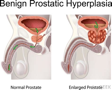 does masterbation cause enlarged prostate picture 6