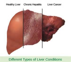 pics of human liver and hep c damage picture 7