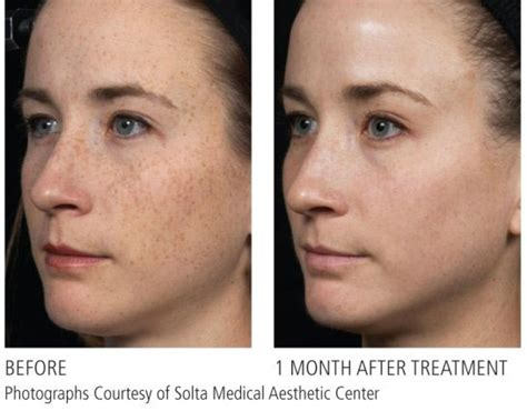 fraxel laser for acne scarring encino picture 9
