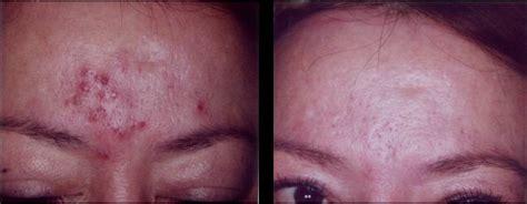cystic acne remover picture 3