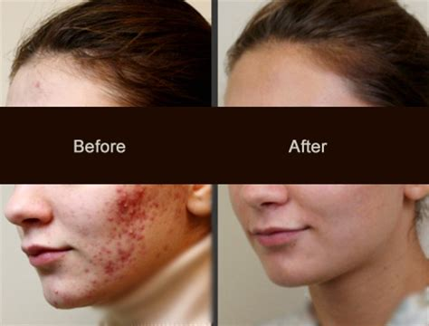 what is the best tablet? for remove acne picture 5