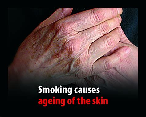 skin problems from smoking picture 2