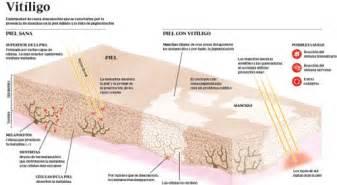 can thyroid cause vitiligo picture 19