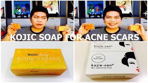remove acne scars picture 11