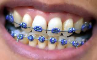 braces picture 10