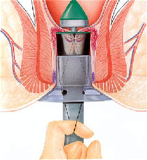 hemorrhoidectomy post op picture 7