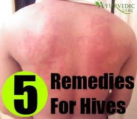 remedies for hives picture 18