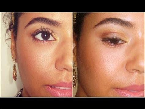 vicks vapor rub cystic acne picture 5