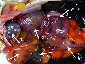 removing gall bladder picture 15