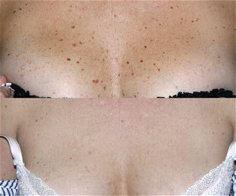 dark skin spot picture 6