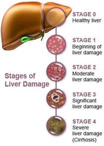 liver damage, treatment for liver damage picture 1