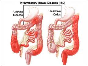 inflammatory bowel condition picture 7