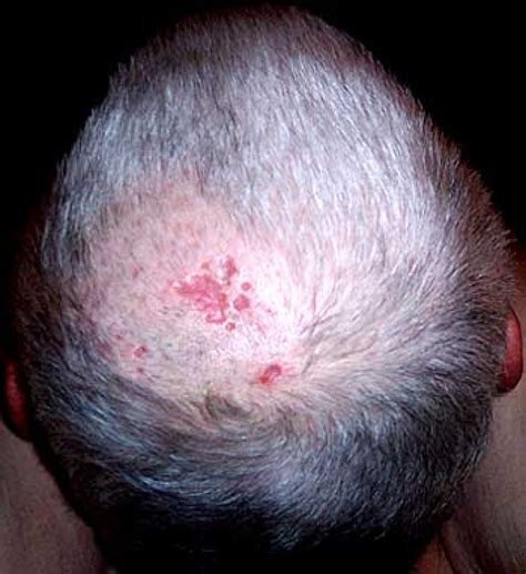 herpes scalp picture 7