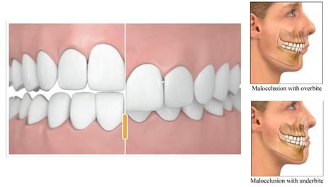 teeth removed to correct overbite picture 1