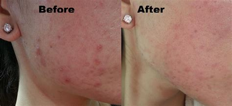 acne marks picture 6