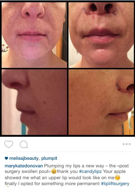 can a lip lift look natural picture 1