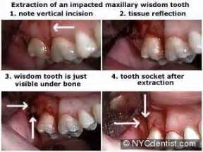 exposure and ligation of maxillary teeth picture 3
