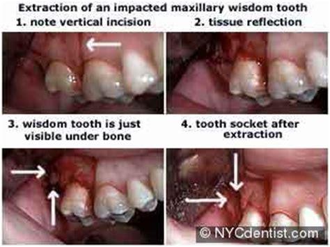 wisdom teeth surgery price picture 17