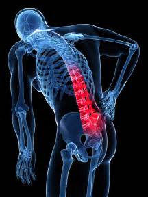 muscle aches pain picture 2