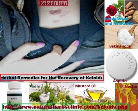 keloid herbal treatment picture 11