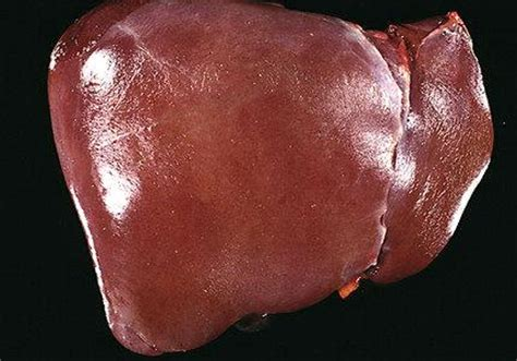 human healthy liver picture 1