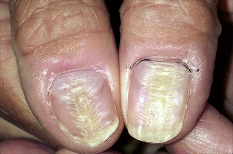 fingernail diformaties picture 2