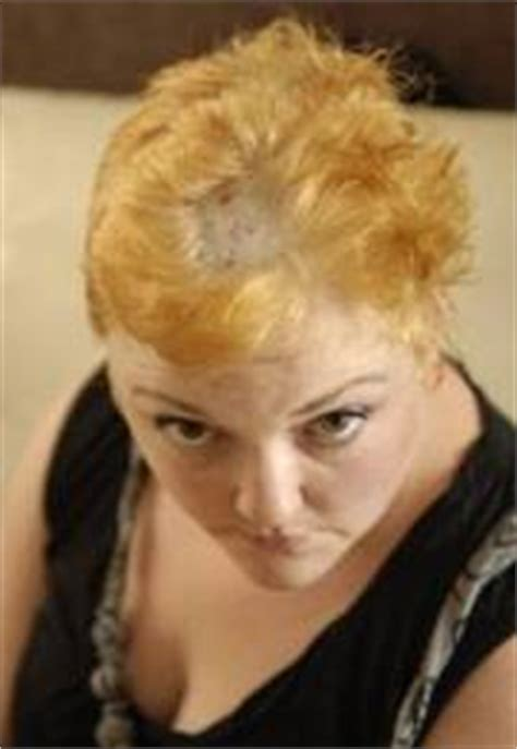 bleaching red hair naturally picture 15