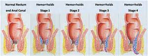 removing hemorrhoids picture 1