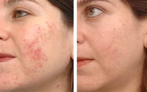 does snow caps glutathione work on skin picture 1