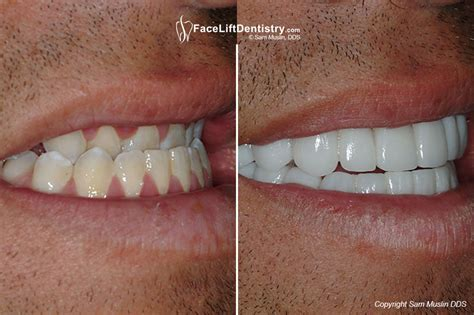 correcting crooked teeth picture 5