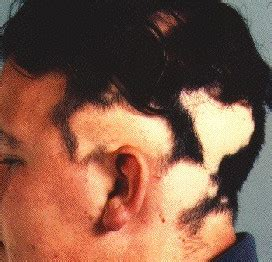 testosterone patch hair loss picture 6