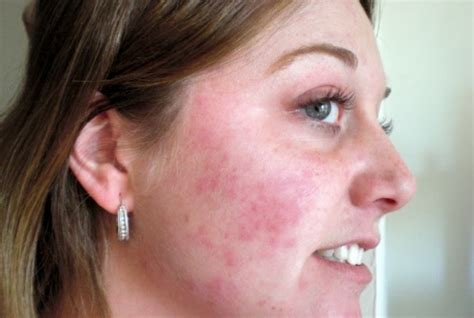 face gel for acne pimples redness at drug picture 9