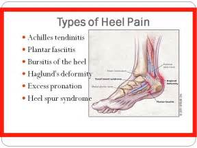 heel pain joint pain head ache picture 10