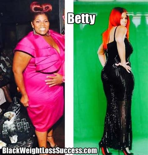 betties weight loss picture 5