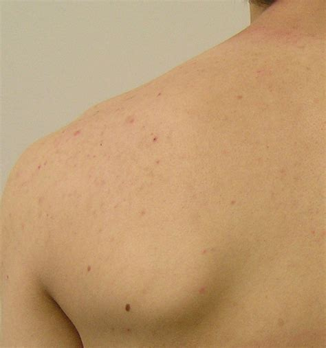 back acne treatment picture 6