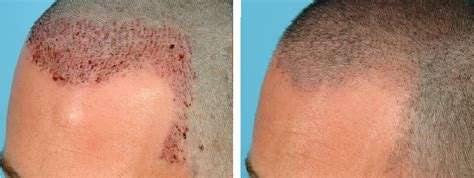 hair transplant removal picture 6
