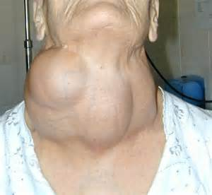 acute thyroid goiter picture 5