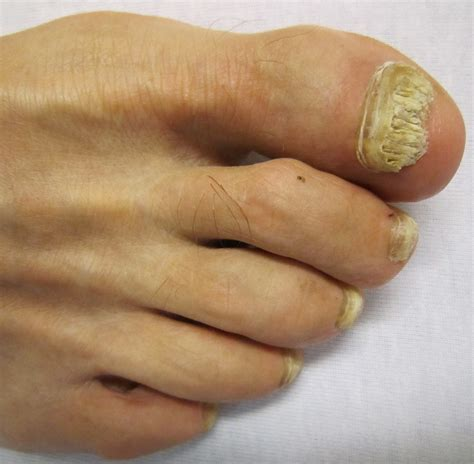 fungus under toe nails picture 3